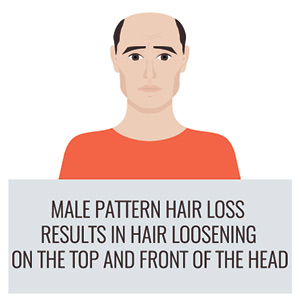 Symptoms for hair loss