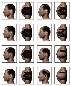 male pattern hairloss chart