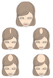Baldness pattern in women