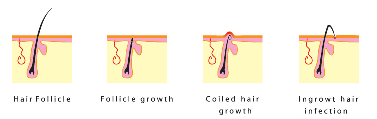 What is ingrown hair